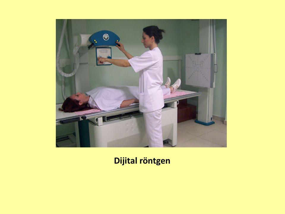 Dijital röntgen