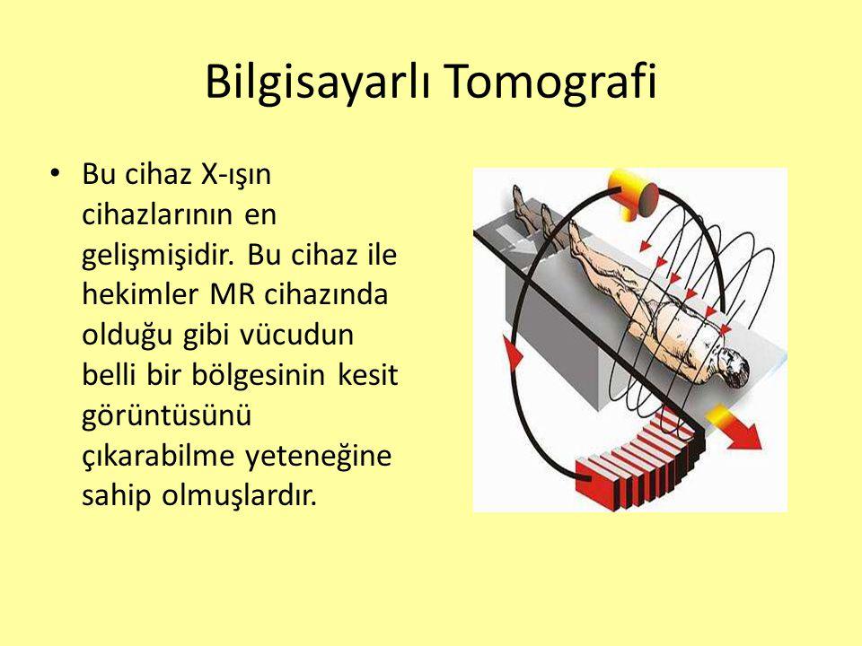 Bilgisayarlı Tomografi Bu cihaz X-ışın cihazlarının en gelişmişidir. Bu cihaz ile hekimler MR cihazında olduğu gibi vücudun belli bir bölgesinin kesit