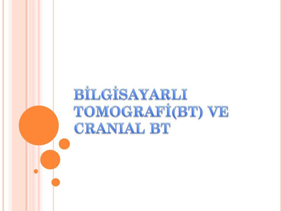 Frontal kemık Coronal sütur Parietal kemik Sagital sütur Oksipital kemik
