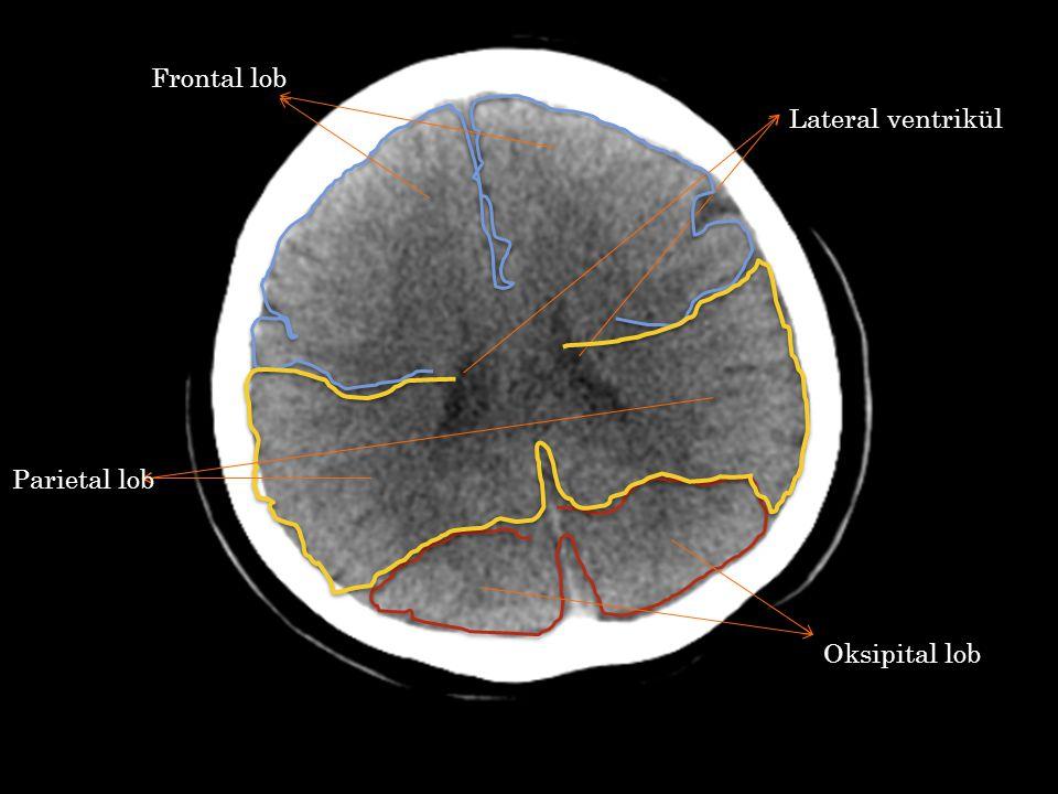 Lateral ventrikül Frontal lob Oksipital lob Parietal lob