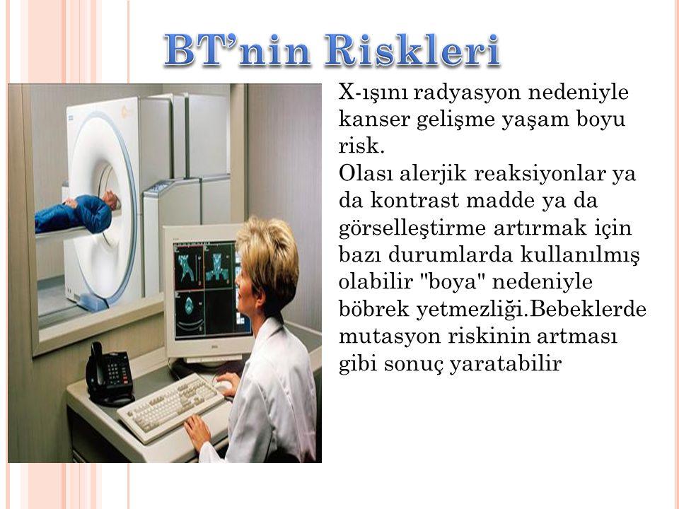X-ışını radyasyon nedeniyle kanser gelişme yaşam boyu risk. Olası alerjik reaksiyonlar ya da kontrast madde ya da görselleştirme artırmak için bazı du