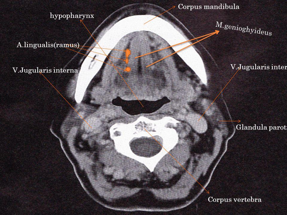 Corpus mandibula Corpus vertebra M.genioghyideus A.lingualis(ramus) V.Jugularis interna Glandula parotis hypopharynx