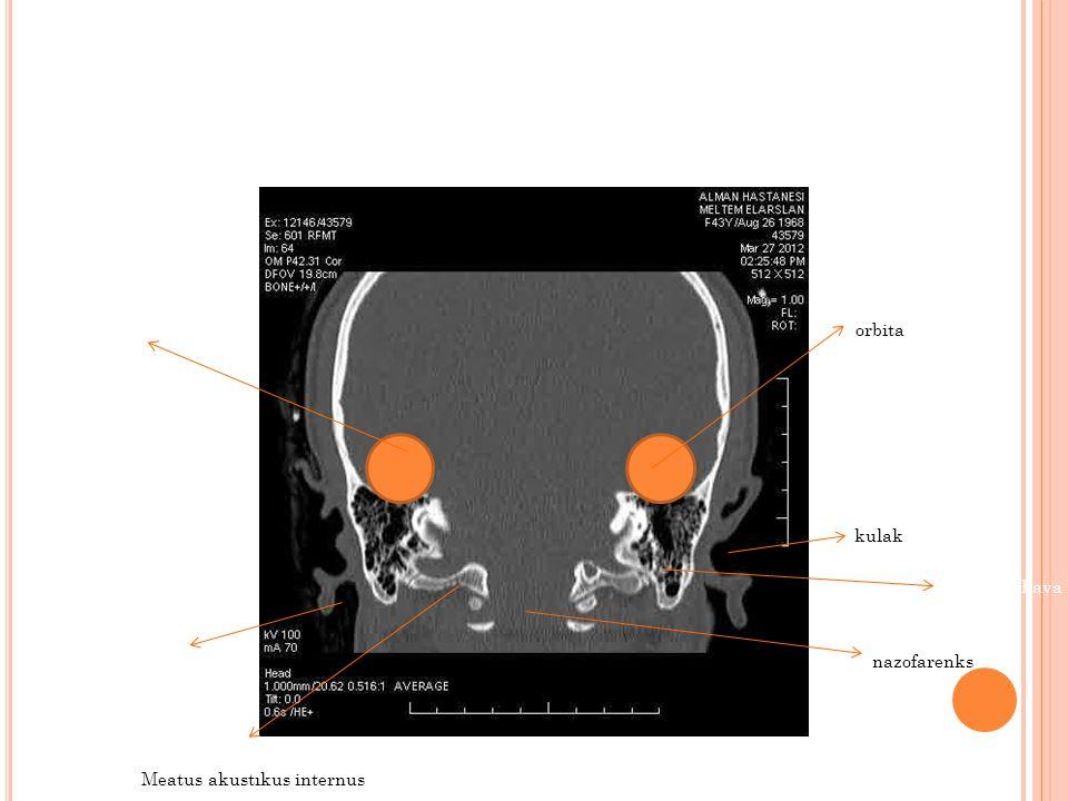 kulak nazofarenks Mastoid hava hücreleri Kulak orbita Meatus akustıkus internus