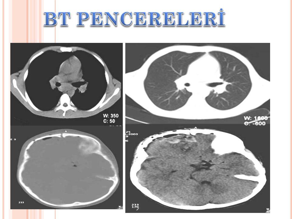 Pitüiter gland Frontal kemik Dorsum sella Mastoid hava hücreleri temporal kemik Oksipital kemik