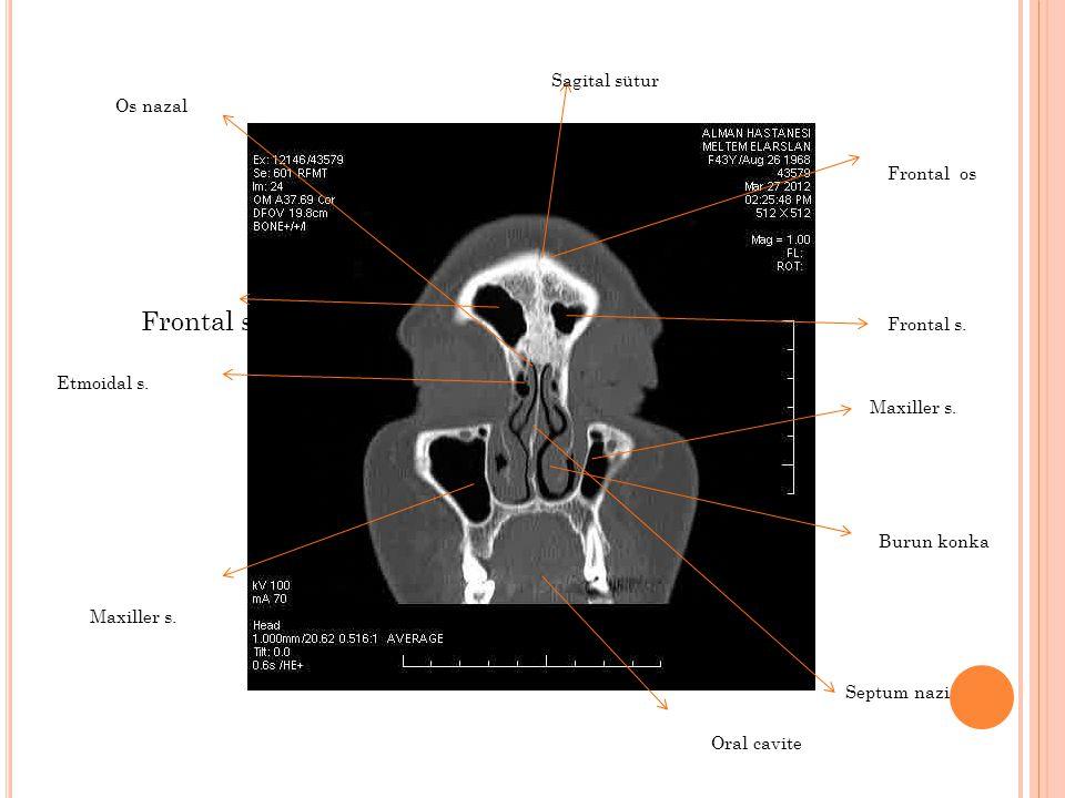 Maxiller s. Septum nazi Frontal s. Frontal os Sagital sütur Etmoidal s. Oral cavite Burun konka Os nazal