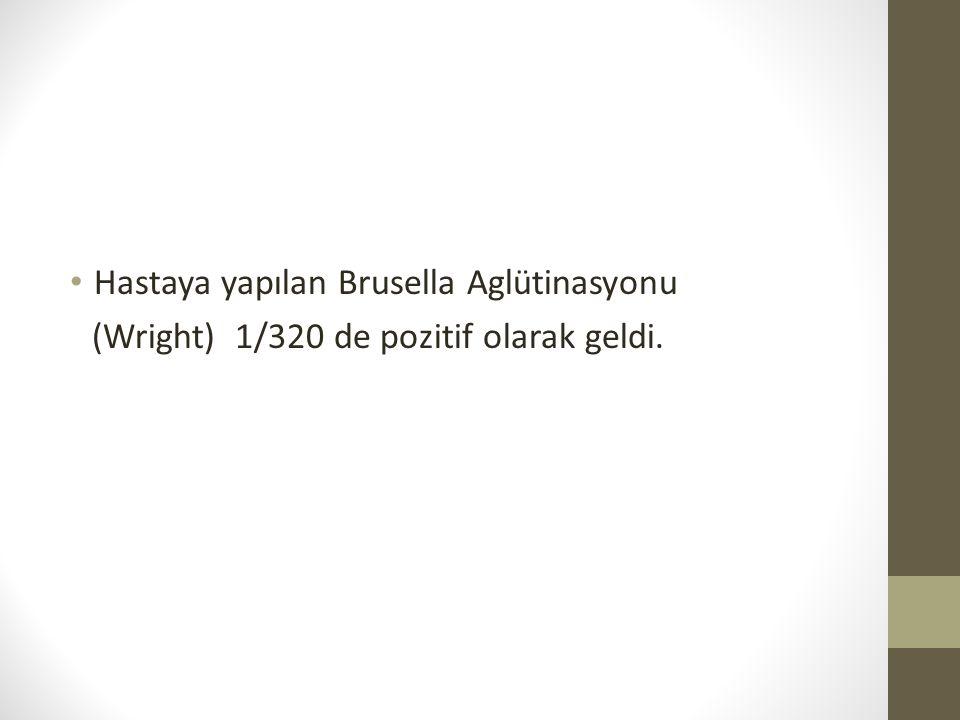 Hastaya yapılan Brusella Aglütinasyonu (Wright) 1/320 de pozitif olarak geldi.