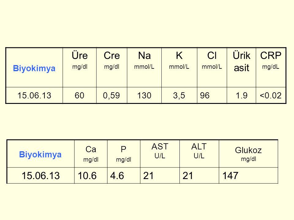 Biyokimya Üre mg/dl Cre mg/dl Na mmol/L K mmol/L Cl mmol/L Ürik asit CRP mg/dL 15.06.13600,591303,5961.9<0.02 Biyokimya Ca mg/dl P mg/dl AST U/L ALT U/L Glukoz mg/dl 15.06.1310.64.621 147