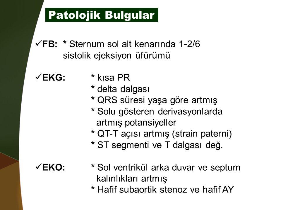 Patolojik Bulgular FB: * Sternum sol alt kenarında 1-2/6 sistolik ejeksiyon üfürümü EKG:* kısa PR * delta dalgası * QRS süresi yaşa göre artmış * Solu