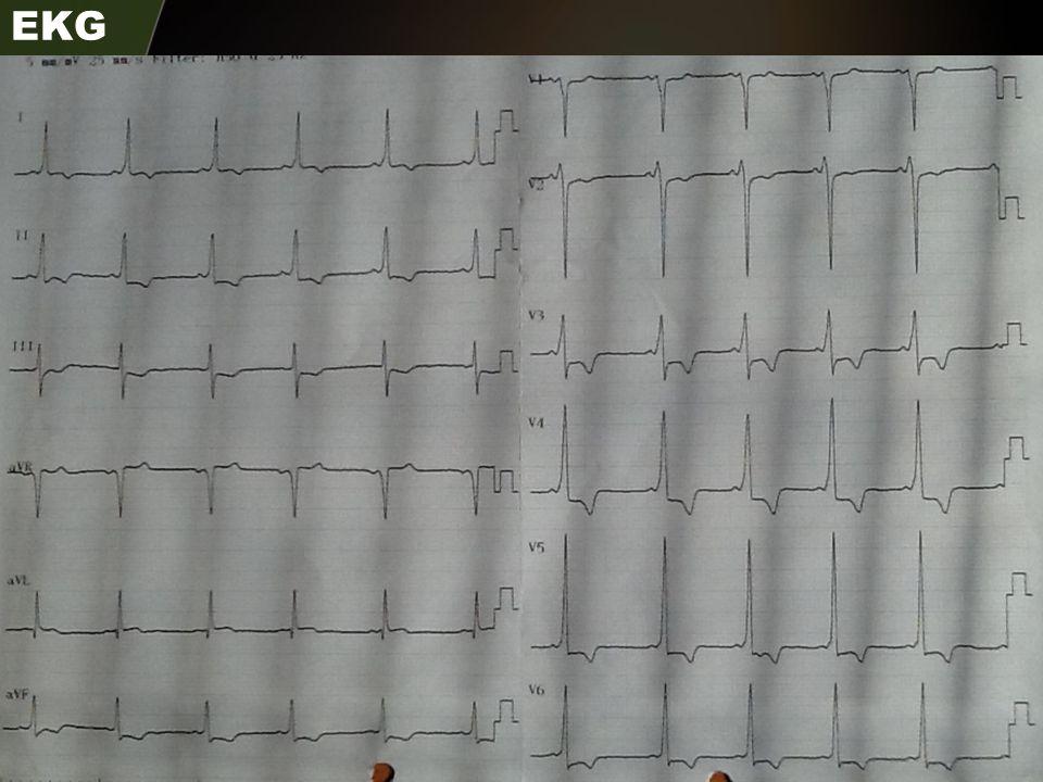 Annenin EKG Örneği