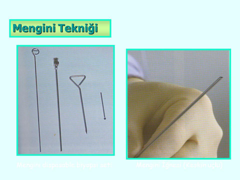Mengini Tekniği Mengini disposable biyopsi seti Mengini İğnesi (Keskin uçlu)
