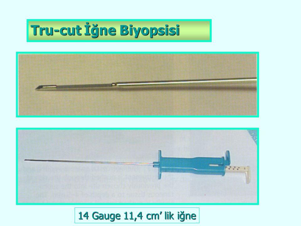 Tru-cut İğne Biyopsisi 14 Gauge 11,4 cm' lik iğne