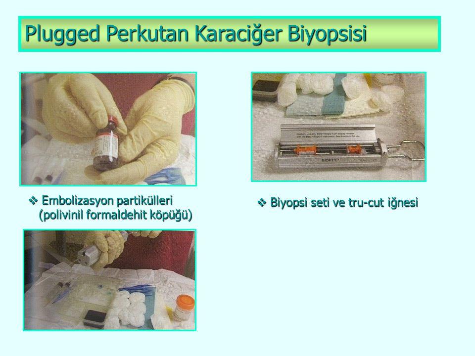 Plugged Perkutan Karaciğer Biyopsisi  Embolizasyon partikülleri (polivinil formaldehit köpüğü) (polivinil formaldehit köpüğü)  Biyopsi seti ve tru-c