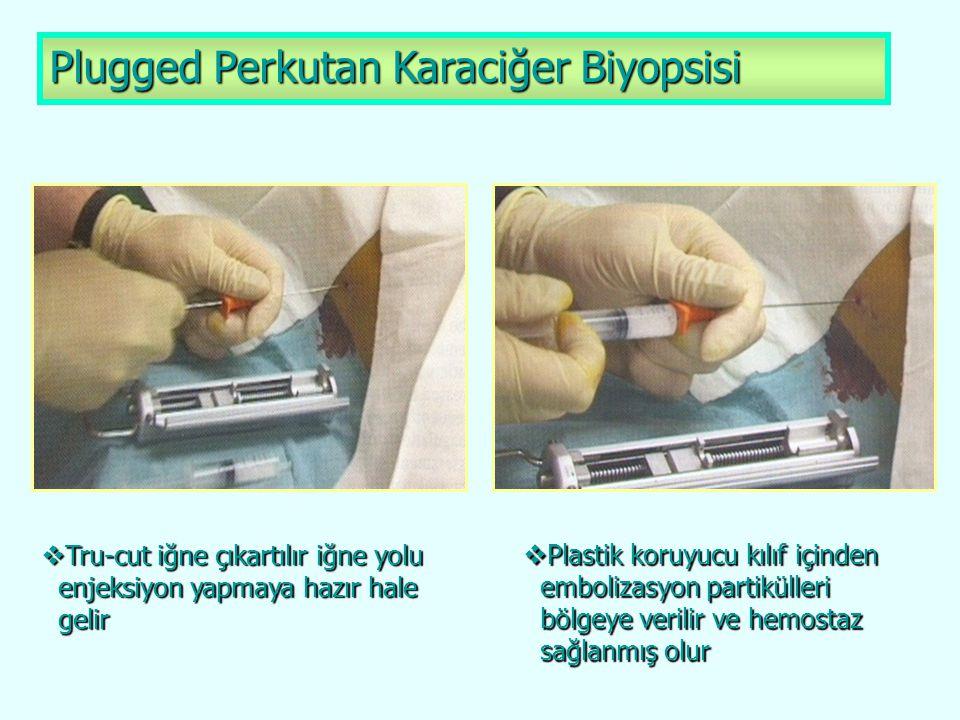 Plugged Perkutan Karaciğer Biyopsisi  Tru-cut iğne çıkartılır iğne yolu enjeksiyon yapmaya hazır hale enjeksiyon yapmaya hazır hale gelir gelir  Pla