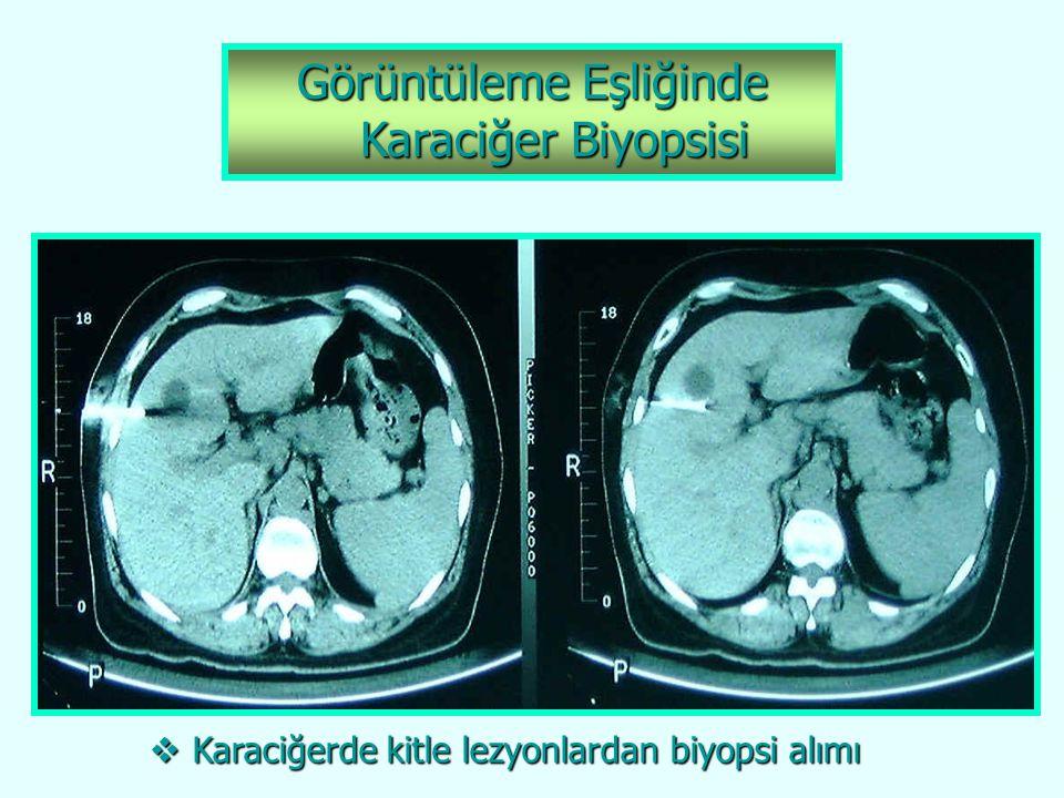 Görüntüleme Eşliğinde Karaciğer Biyopsisi Karaciğer Biyopsisi  Karaciğerde kitle lezyonlardan biyopsi alımı