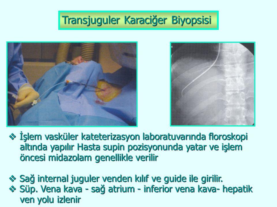 Transjuguler Karaciğer Biyopsisi  İşlem vasküler kateterizasyon laboratuvarında floroskopi altında yapılır Hasta supin pozisyonunda yatar ve işlem al