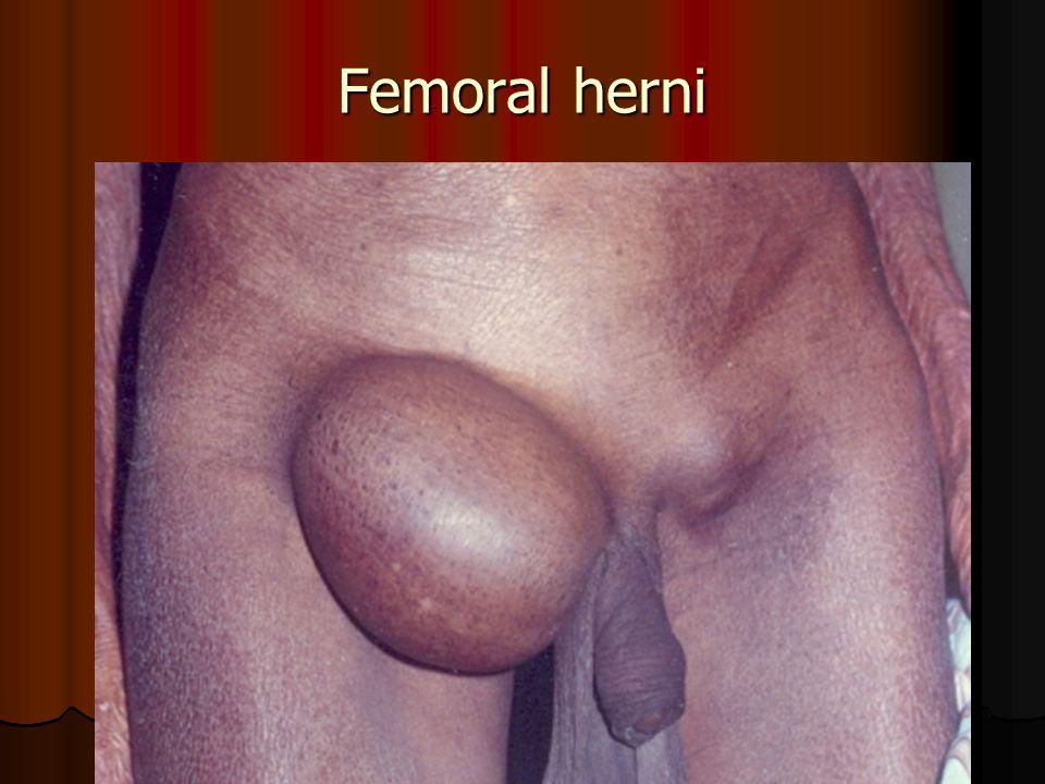 Femoral herni