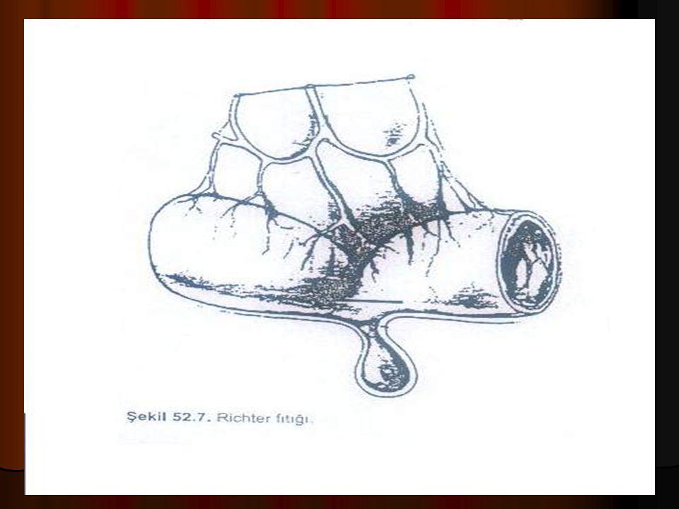 Fıtık Komplikasyonları 4 Littre fıtığı, bu fıtıkta kese içinde Meckel divertikülü sıkışır Littre fıtığı, bu fıtıkta kese içinde Meckel divertikülü sıkışır Genellikle beslenmesi giderek bozularak strangulasyona neden olur, buna rağmen mekanik barsak obstrüksiyonuna genellikle neden olmaz Genellikle beslenmesi giderek bozularak strangulasyona neden olur, buna rağmen mekanik barsak obstrüksiyonuna genellikle neden olmaz