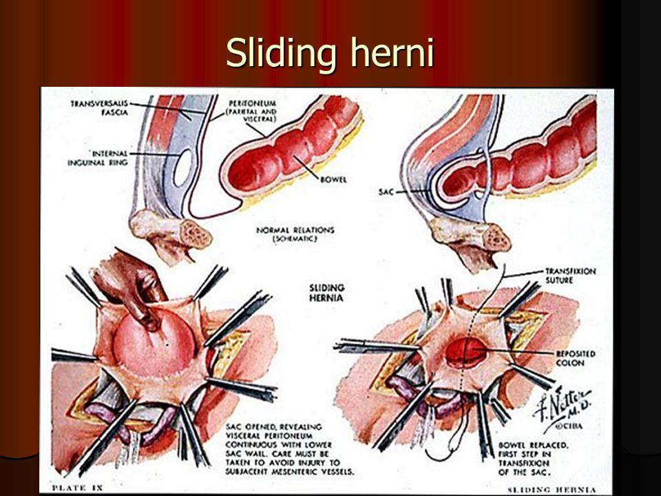Sliding herni