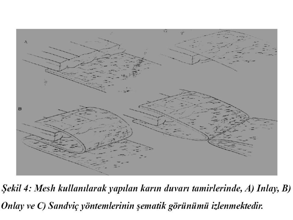 UMBLİKAL HERNİLER Umblikal yapıların karın duvarından çıktıkları bölgeyle (göbek halkasından) ilişkili olur Umblikal yapıların karın duvarından çıktıkları bölgeyle (göbek halkasından) ilişkili olur Kadınlarda erkeklere göre 10 kat fazla Kadınlarda erkeklere göre 10 kat fazla Defekt çocuklarda sıktır.