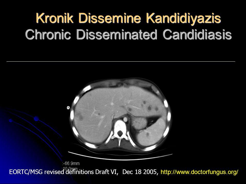 Tanımlar - Klinik Definitions Clinical features Kronik Dissemine Kandidiyazis Chronic disseminated candidiasis Kronik Dissemine Kandidiyazis Chronic disseminated candidiasis Karaciğer ve/veya dalakta küçük, periferik, hedef benzeri abseler (yeni nodüler dolma defektleri, boğa gözü lezyonları) Small, peripheral, target like abscesses (new nodular filling defects, bull's-eye lesions) in liver and/or spleen EORTC/MSG revised definitions Draft VI, Dec 18 2005, http://www.doctorfungus.org/