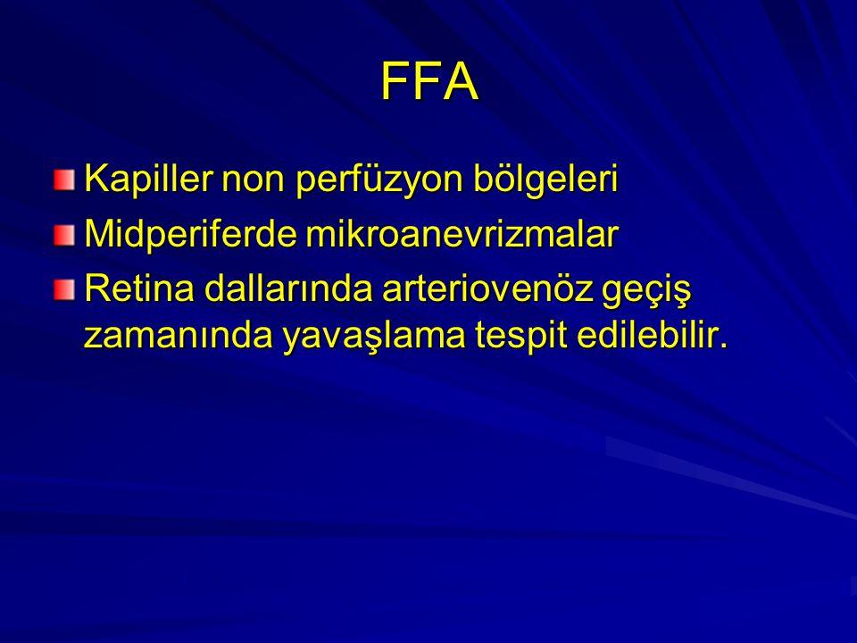 FFA Kapiller non perfüzyon bölgeleri Midperiferde mikroanevrizmalar Retina dallarında arteriovenöz geçiş zamanında yavaşlama tespit edilebilir.
