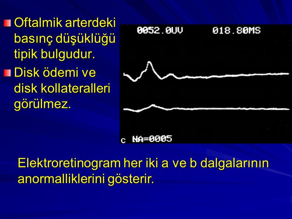 Oftalmik arterdeki basınç düşüklüğü tipik bulgudur. Disk ödemi ve disk kollateralleri görülmez. Elektroretinogram her iki a ve b dalgalarının anormall