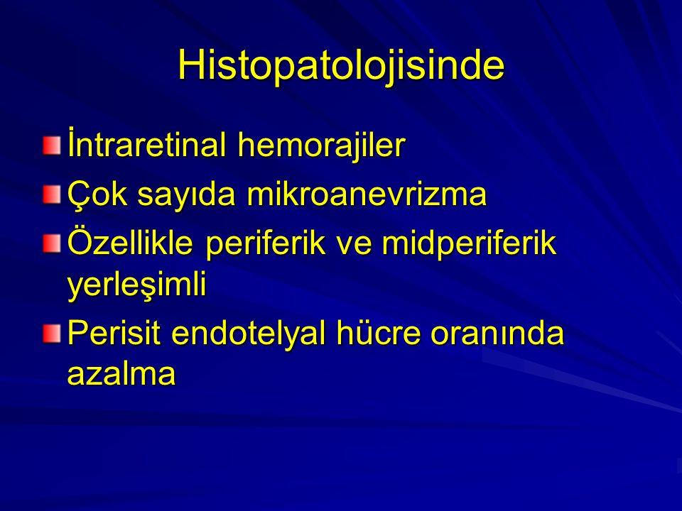 Histopatolojisinde İntraretinal hemorajiler Çok sayıda mikroanevrizma Özellikle periferik ve midperiferik yerleşimli Perisit endotelyal hücre oranında