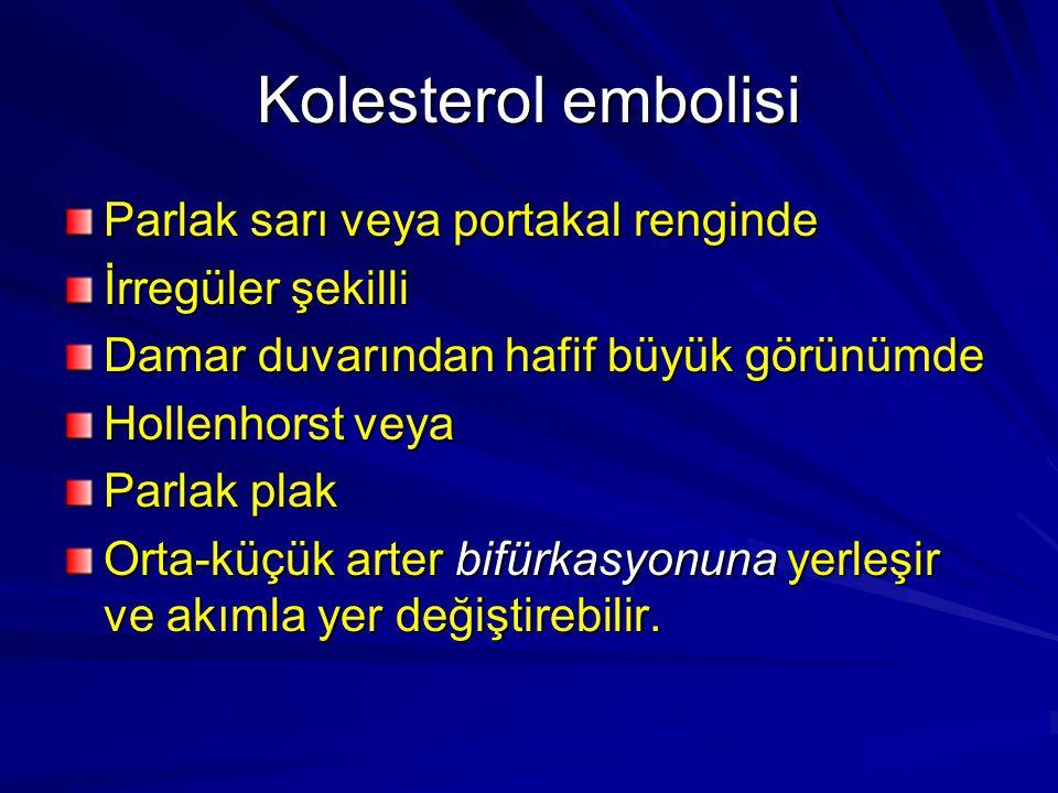 Kolesterol embolisi Parlak sarı veya portakal renginde İrregüler şekilli Damar duvarından hafif büyük görünümde Hollenhorst veya Parlak plak Orta-küçü