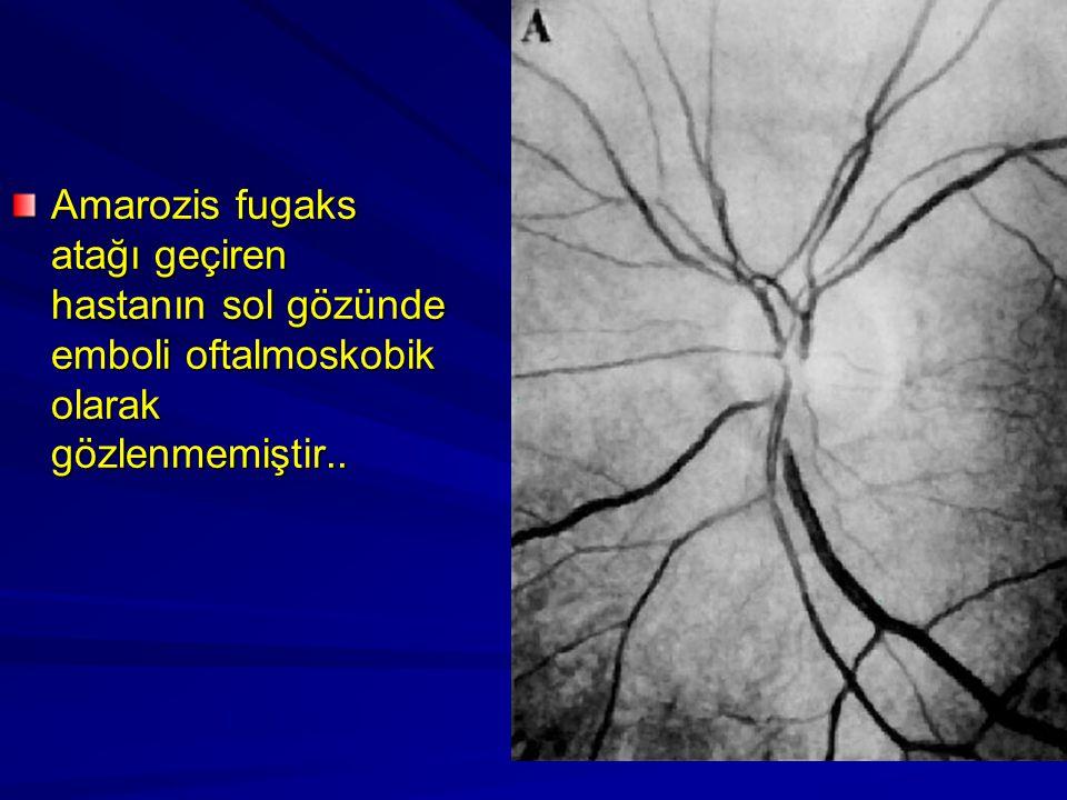 Amarozis fugaks atağı geçiren hastanın sol gözünde emboli oftalmoskobik olarak gözlenmemiştir..