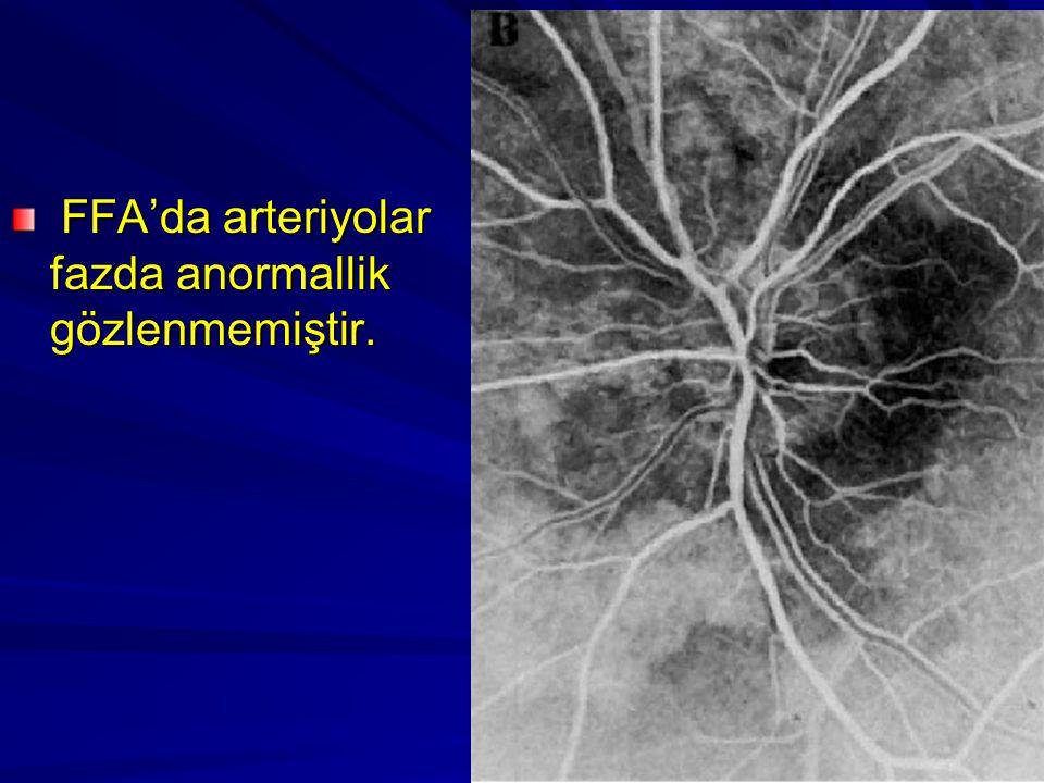 FFA'da arteriyolar fazda anormallik gözlenmemiştir. FFA'da arteriyolar fazda anormallik gözlenmemiştir.