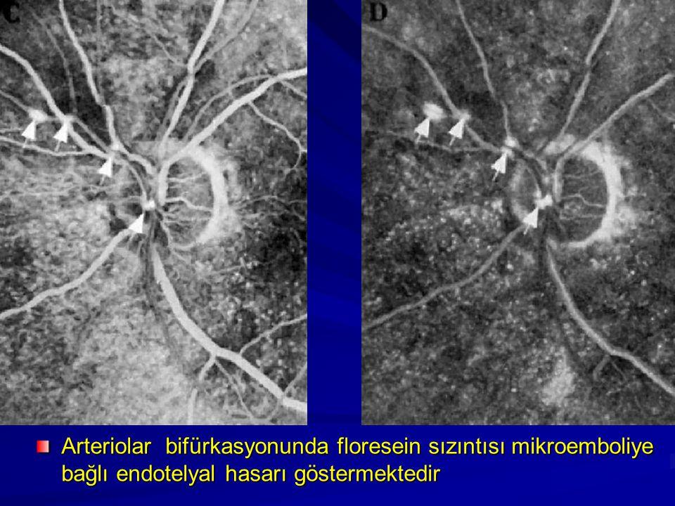 Arteriolar bifürkasyonunda floresein sızıntısı mikroemboliye bağlı endotelyal hasarı göstermektedir