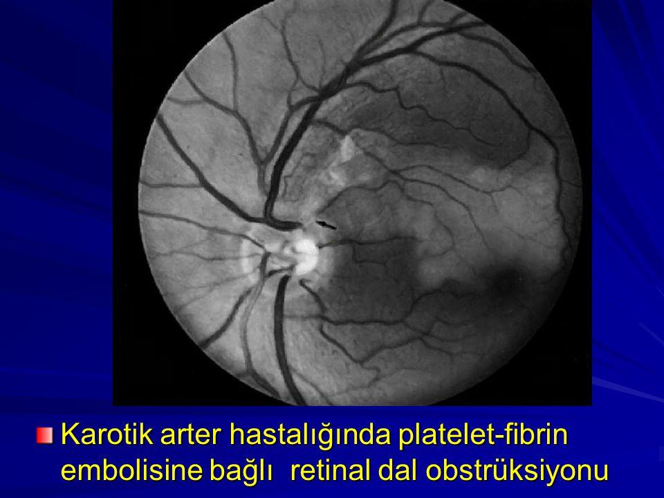 Karotik arter hastalığında platelet-fibrin embolisine bağlı retinal dal obstrüksiyonu