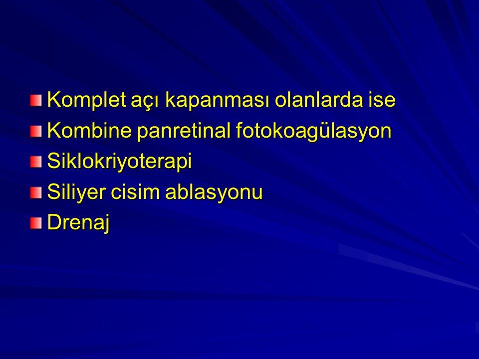 Komplet açı kapanması olanlarda ise Kombine panretinal fotokoagülasyon Siklokriyoterapi Siliyer cisim ablasyonu Drenaj