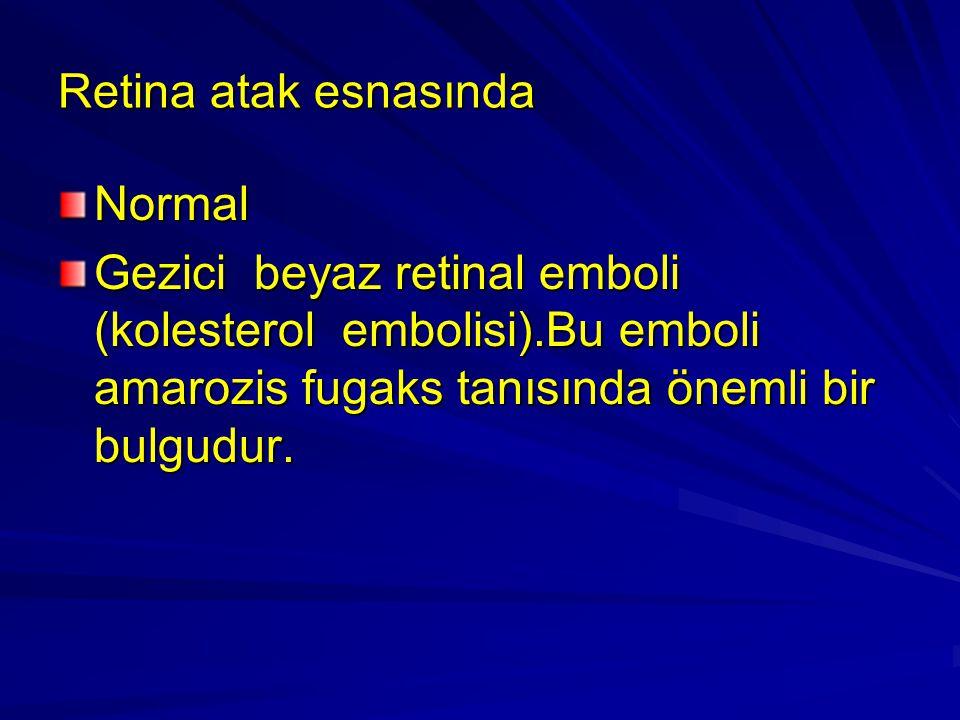 Retina atak esnasında Normal Gezici beyaz retinal emboli (kolesterol embolisi).Bu emboli amarozis fugaks tanısında önemli bir bulgudur.