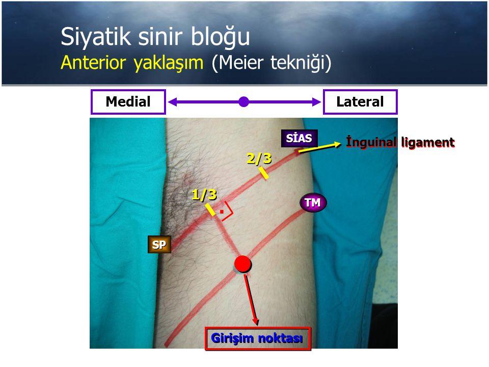 Siyatik sinir bloğu Anterior yaklaşım (Meier tekniği) Girişim noktası 1/3 2/3 MedialLateral İnguinal ligament TM SİAS SP.