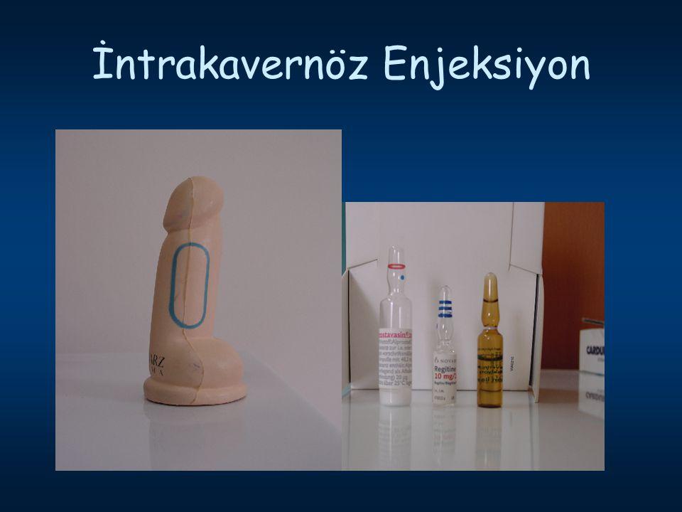 İntrakavernöz Enjeksiyon