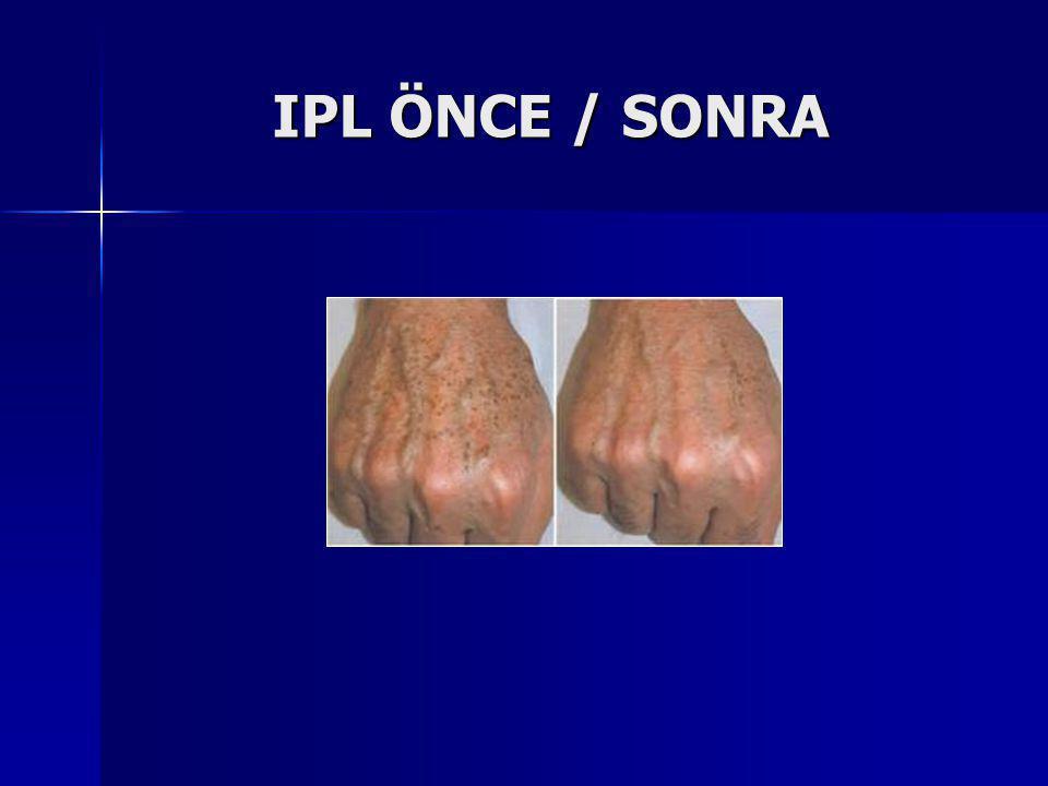IPL ÖNCE / SONRA IPL ÖNCE / SONRA
