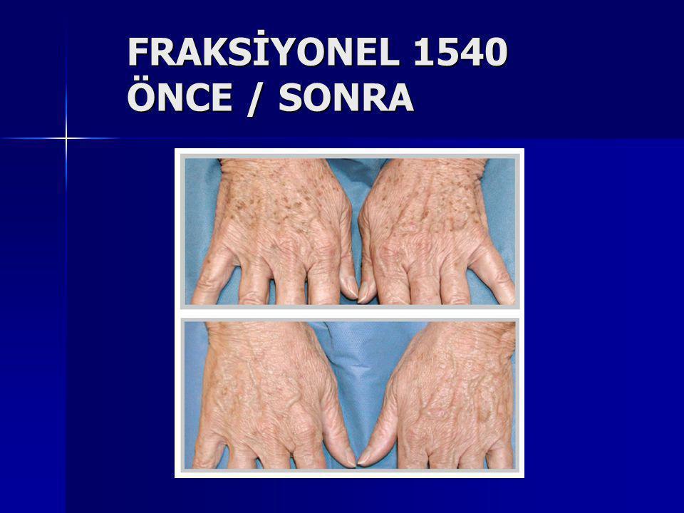 FRAKSİYONEL 1540 ÖNCE / SONRA