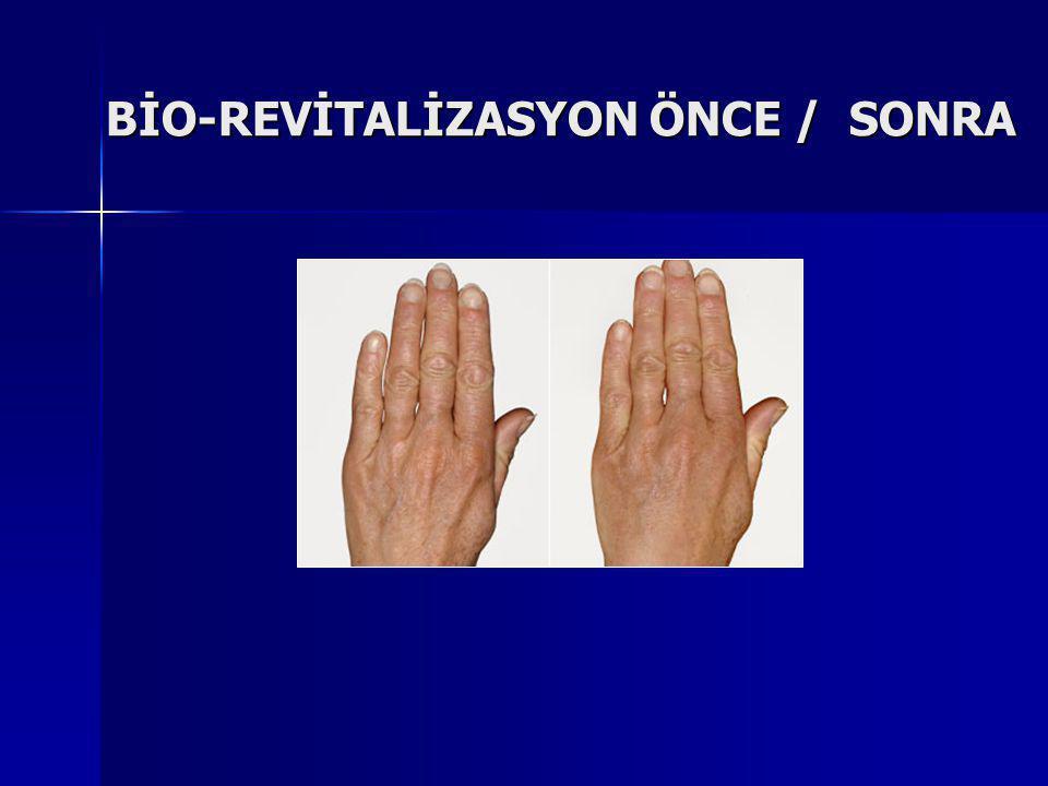 BİO-REVİTALİZASYON ÖNCE / SONRA