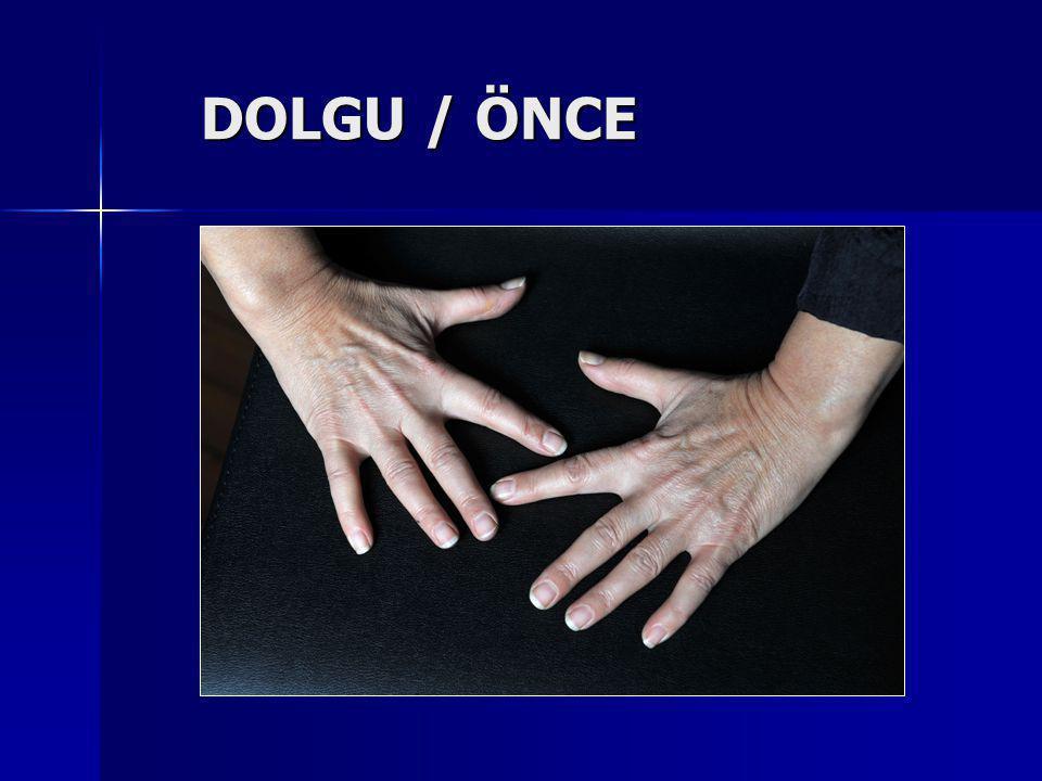 DOLGU / ÖNCE DOLGU / ÖNCE