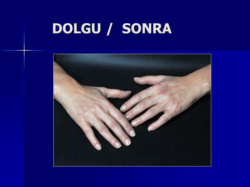 DOLGU / SONRA DOLGU / SONRA