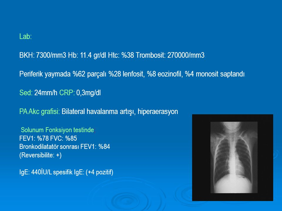 Lab: BKH: 7300/mm3 Hb: 11.4 gr/dl Htc: %38 Trombosit: 270000/mm3 Periferik yaymada %62 parçalı %28 lenfosit, %8 eozinofil, %4 monosit saptandı. Sed: 2