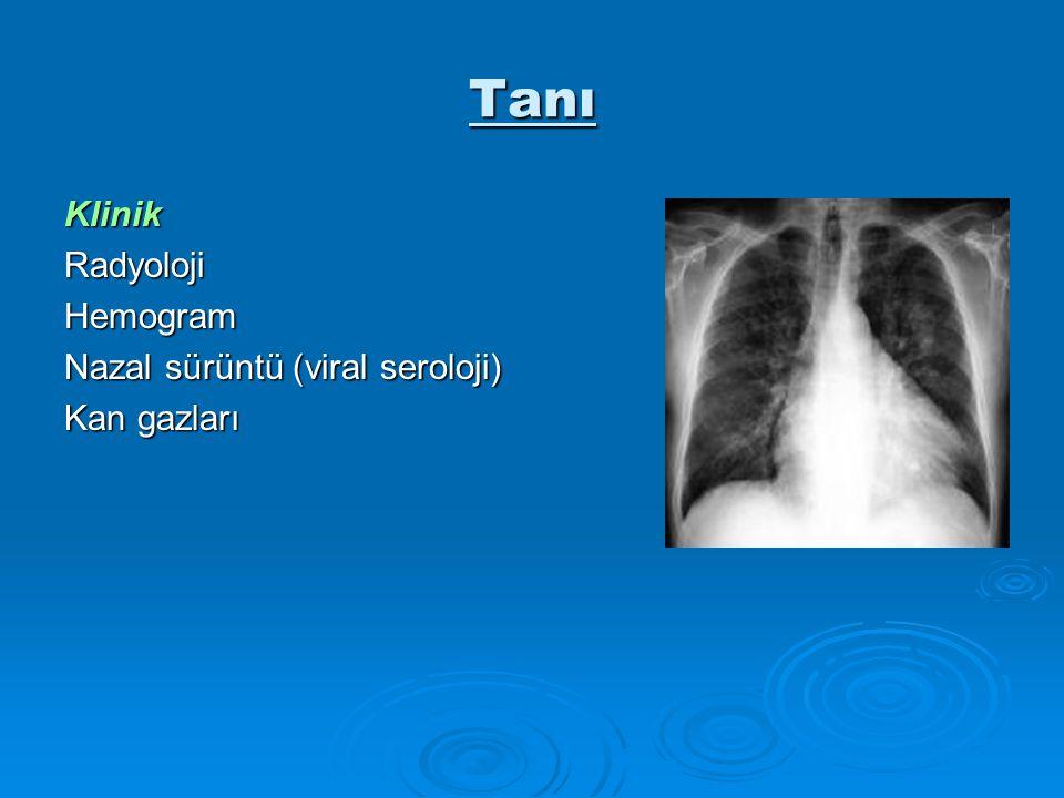 Tanı KlinikRadyolojiHemogram Nazal sürüntü (viral seroloji) Kan gazları