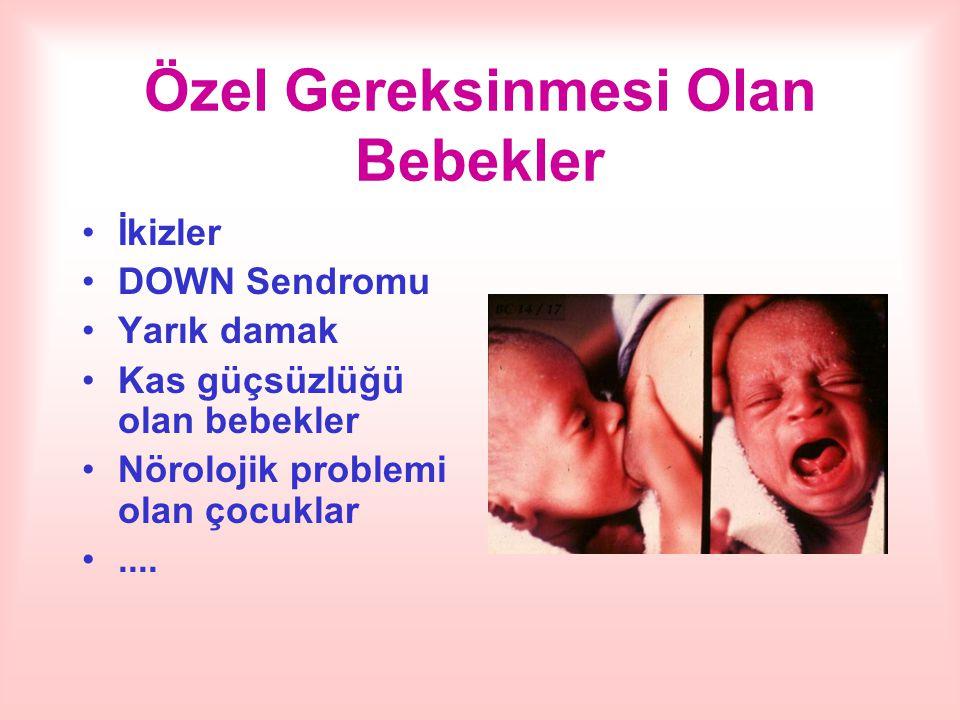 Özel Gereksinmesi Olan Bebekler İkizler DOWN Sendromu Yarık damak Kas güçsüzlüğü olan bebekler Nörolojik problemi olan çocuklar....