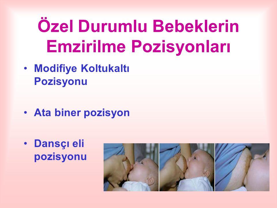 Özel Durumlu Bebeklerin Emzirilme Pozisyonları Modifiye Koltukaltı Pozisyonu Ata biner pozisyon Dansçı eli pozisyonu