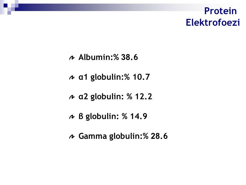 Albumin:% 38.6 α1 globulin:% 10.7 α2 globulin: % 12.2 β globulin: % 14.9 Gamma globulin:% 28.6 Protein Elektrofoezi