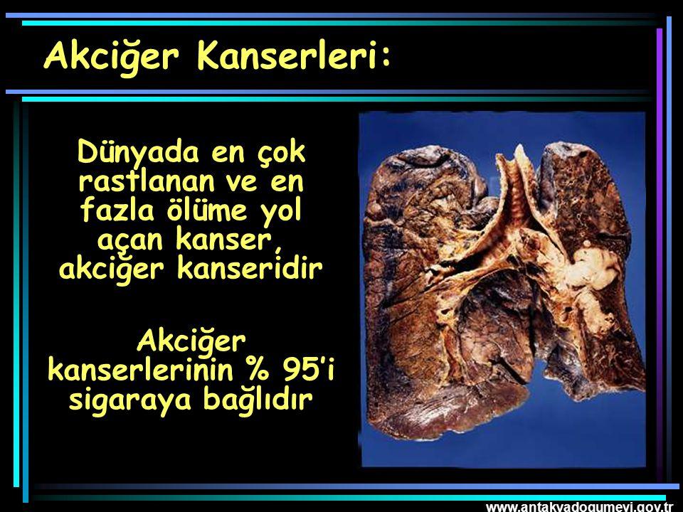 www.antakyadogumevi.gov.tr Dünyada en çok rastlanan ve en fazla ölüme yol açan kanser, akciğer kanseridir Akciğer kanserlerinin % 95'i sigaraya bağlıd