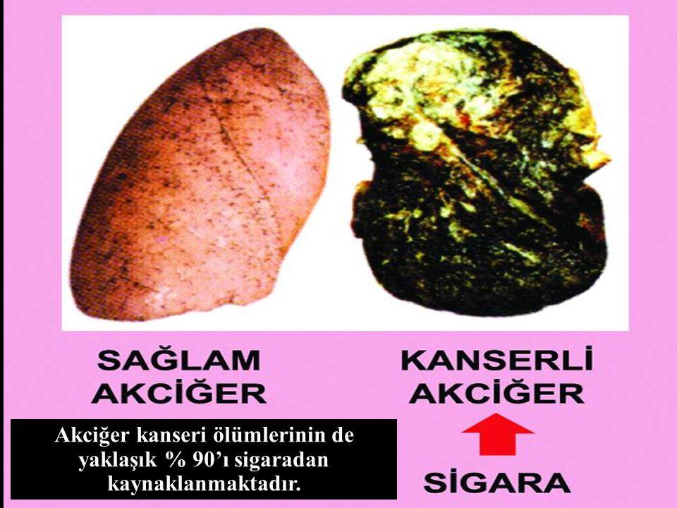 www.antakyadogumevi.gov.tr Akciğer kanseri ölümlerinin de yaklaşık % 90'ı sigaradan kaynaklanmaktadır.