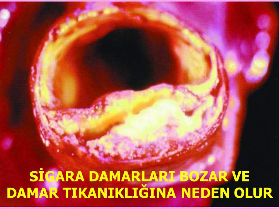 www.antakyadogumevi.gov.tr SİGARA DAMARLARI BOZAR VE DAMAR TIKANIKLIĞINA NEDEN OLUR