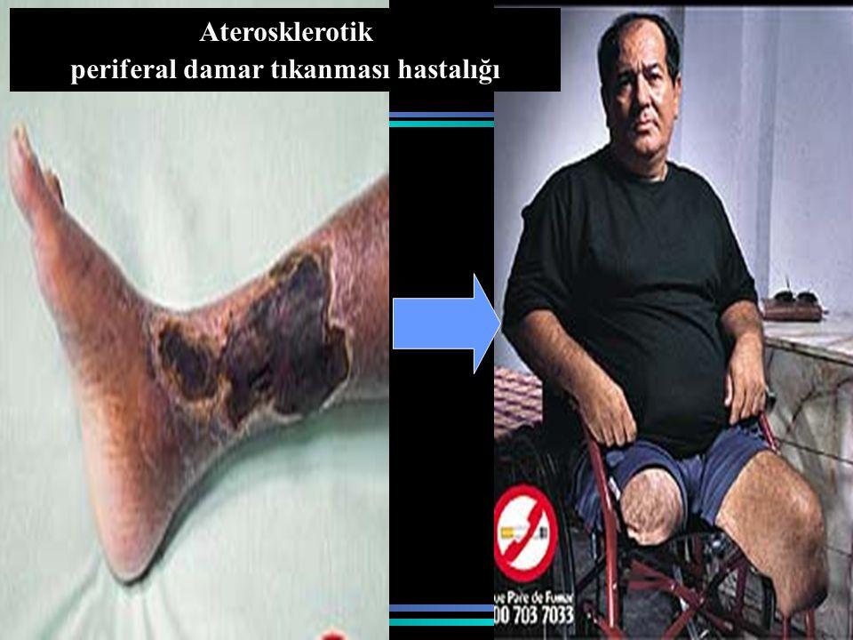 www.antakyadogumevi.gov.tr Aterosklerotik periferal damar tıkanması hastalığı